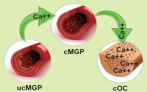 Ca++ (kalk) flyttes fra karvæggen ind i knoglerne pga. K2-Vitamin